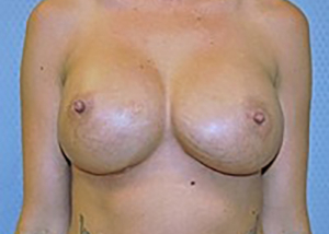 breast-revision-breast-asymmetry-beverly-hills-woman-after-front-dr-maan-kattash