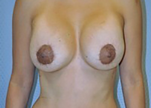 breast-revision-rancho-cucamonga-woman-after-front-dr-maan-kattash