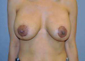 breast-revision-surgery-augmentation-claremont-woman-after-front-dr-maan-kattash