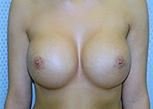 breast-revision-surgery-beverly-hills-woman-after-front-dr-maan-kattash