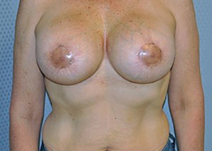 breast-revision-surgery-implants-los-angeles-woman-front-after-dr-maan-kattash