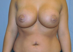 breast-revision-surgery-implants-scarring-los-angeles-woman-after-front-dr-maan-kattash