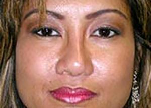 chin-augmentation-cheek-plastic-surgery-rancho-cucamonga-woman-after-front-dr-maan-kattash-2