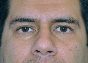 eyelid-lift-blepharoplasty-cosmetic-surgery-beverly-hills-man-after-front-dr-maan-kattash (2)