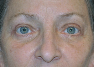 eyelid-lift-blepharoplasty-cosmetic-surgery-rancho-cucamonga-woman-after-front-dr-maan-kattash