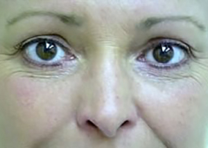 eyelid-lift-blepharoplasty-cosmetic-surgery-upland-woman-after-front-dr-maan-kattash