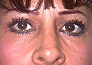 eyelid-lift-blepharoplasty-plastic-surgery-inland-empire-woman-after-front-dr-maan-kattash-2