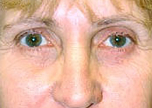 eyelid-lift-blepharoplasty-plastic-surgery-irvine-woman-after-front-dr-maan-kattash