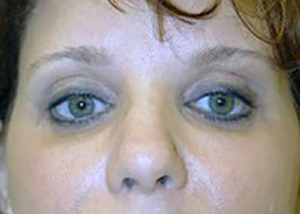 eyelid-lift-blepharoplasty-plastic-surgery-ontario-woman-after-front-dr-maan-kattash