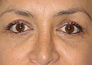 eyelid-lift-blepharoplasty-plastic-surgery-orange-county-woman-after-front-dr-maan-kattas