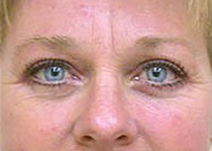 eyelid-lift-blepharoplasty-plastic-surgery-tustin-woman-after-front-dr-maan-kattash
