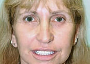 facelift-plastic-surgery-irvine-woman-after-front-dr-maan-kattash