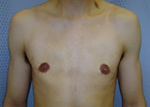 gynecomastia-male-breast-reduction-surgery-beverly-hills-after-front-dr-maan-kattash-2