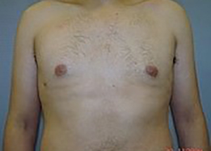 gynecomastia-male-breast-reduction-surgery-claremont-after-front-dr-maan-kattash