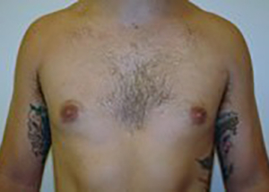 gynecomastia-male-breast-reduction-surgery-ontario-after-front-dr-maan-kattash