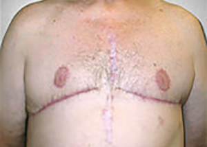 gynecomastia-male-breast-reduction-surgery-upland-after-front-dr-maan-kattash