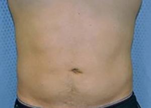 liposuction-plastic-surgery-upland-man-woman-after-front-dr-maan-kattash