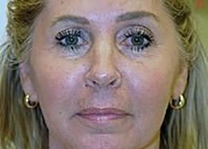 neck-lift-plastic-surgery-beverly-hills-woman-after-front-dr-maan-kattash