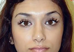 rhinoplasty-plastic-surgery-nose-job-irvine-woman-after-front-dr-maan-kattash2