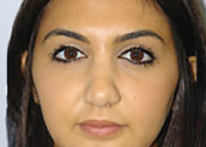 rhinoplasty-plastic-surgery-nose-job-orange-county-woman-after-front-dr-maan-kattash2