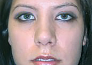 rhinoplasty-plastic-surgery-nose-job-tustin-woman-after-front-dr-maan-kattash2