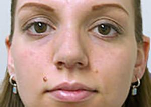 rhinoplasty-surgery-nose-job-los-angeles-woman-after-front-dr-maan-kattash2