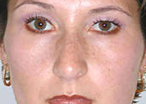 rhinoplasty-surgery-nose-job-los-beverly-hills-after-front-dr-maan-kattash2