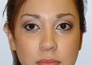 rhinoplasty-surgery-nose-job-los-upland-after-front-dr-maan-kattash2