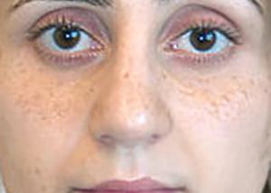 rhinoplasty-surgery-nose-job-tustin-woman-after-front-dr-maan-kattash2