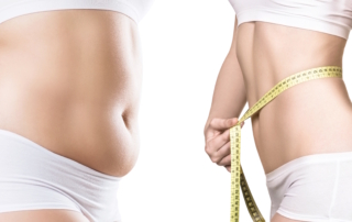 An overweight woman that underwent liposuction with her picture on the right measuring her waist using a measuring tape