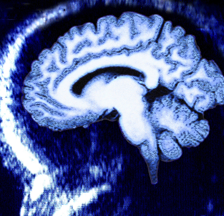 MRI of the Brain - Neurosequential Model of Therapeutics (NMT)