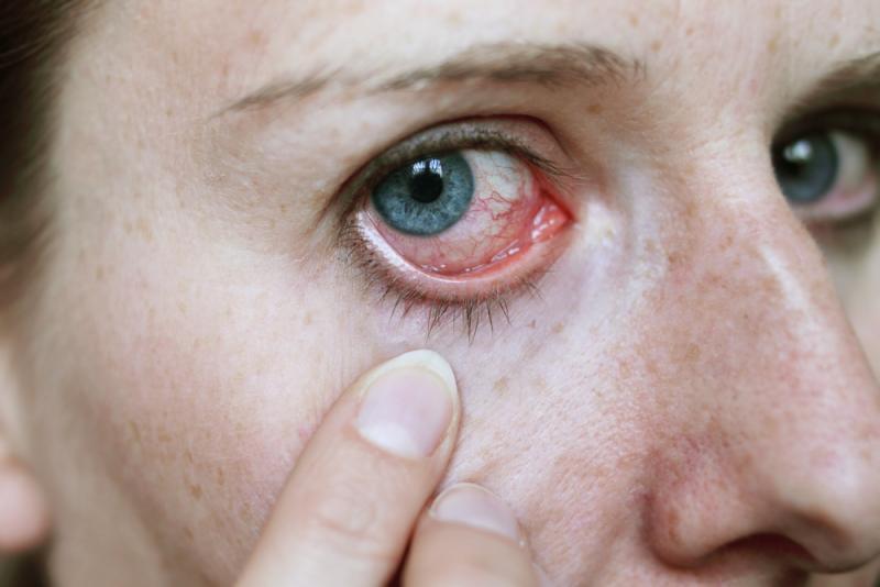 Redness in the Eye