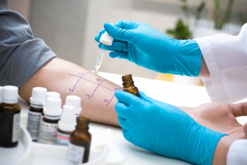 Skin or Blood Tests Reveal Triggers