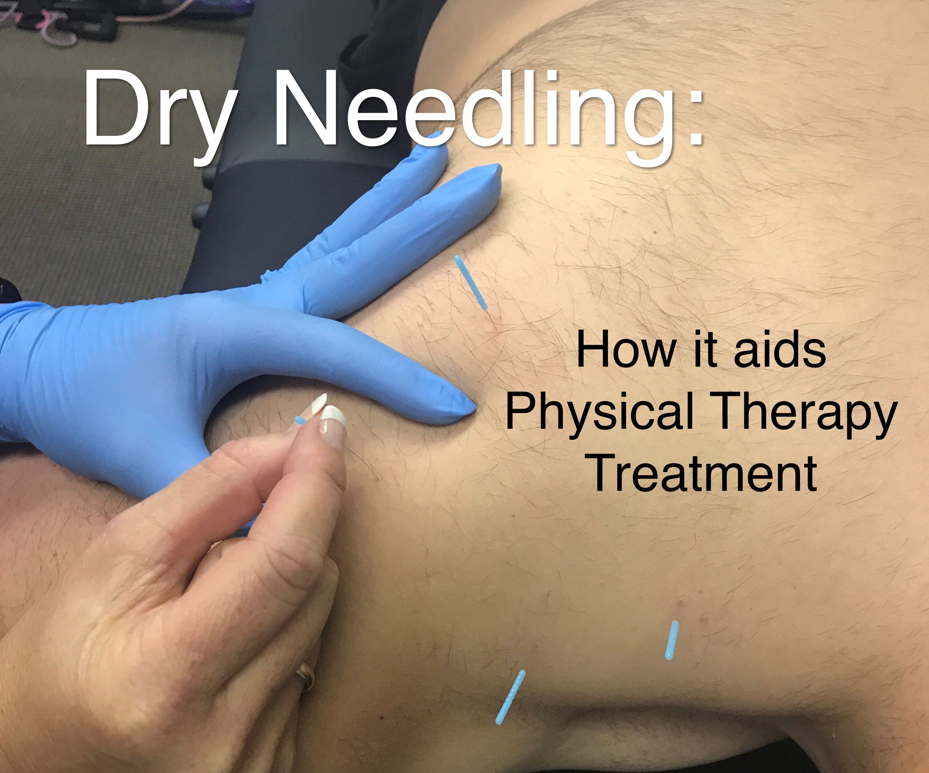 Fremont Nebraska  Physical Therapy Dry Needling