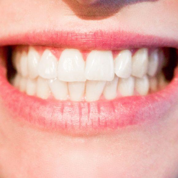 Teeth Whitening in Richmond