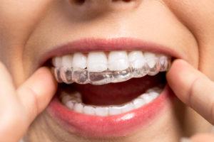 Orthodontist Richmond BC