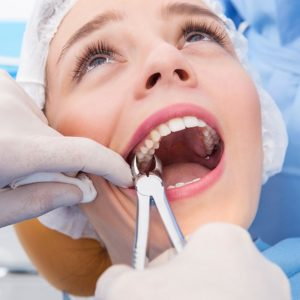 Tooth Extraction Richmond BC - Wisdom Tooth Removal Richmond BC