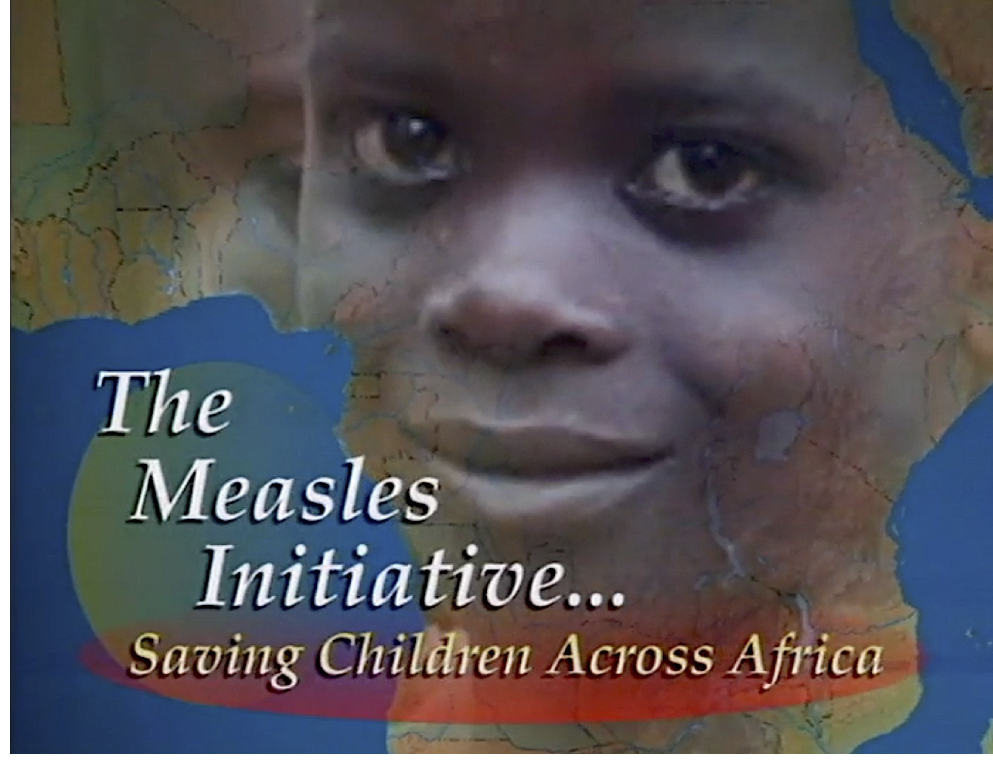 MEASLES PIC 2