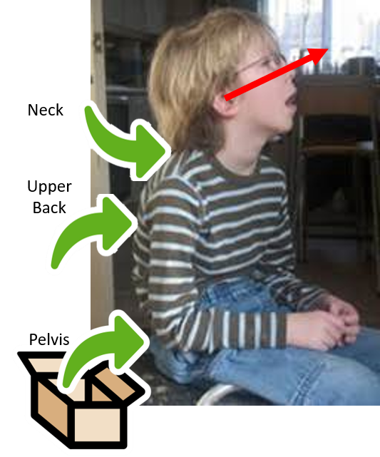 This photo shows a boy sitting with a rounded back.  His neck is  hyper-extended and his mouth is hanging open