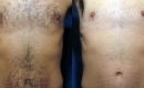 Before and After Chest Laser Hair Removal
