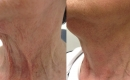 Before and After NeckTite Neck and Jowl Tightening