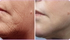 Before and After Laser Skin Tightening