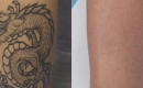 Before and After Laser Tattoo Removal on the Calf