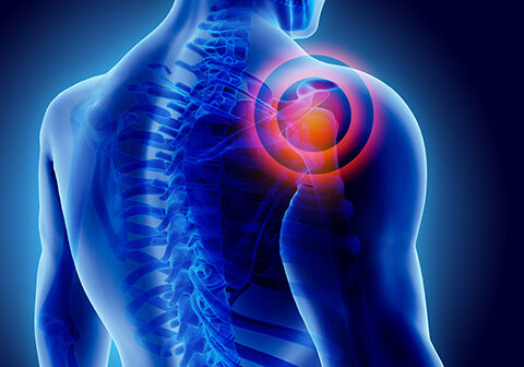 Reverse Shoulder Implant Injuries