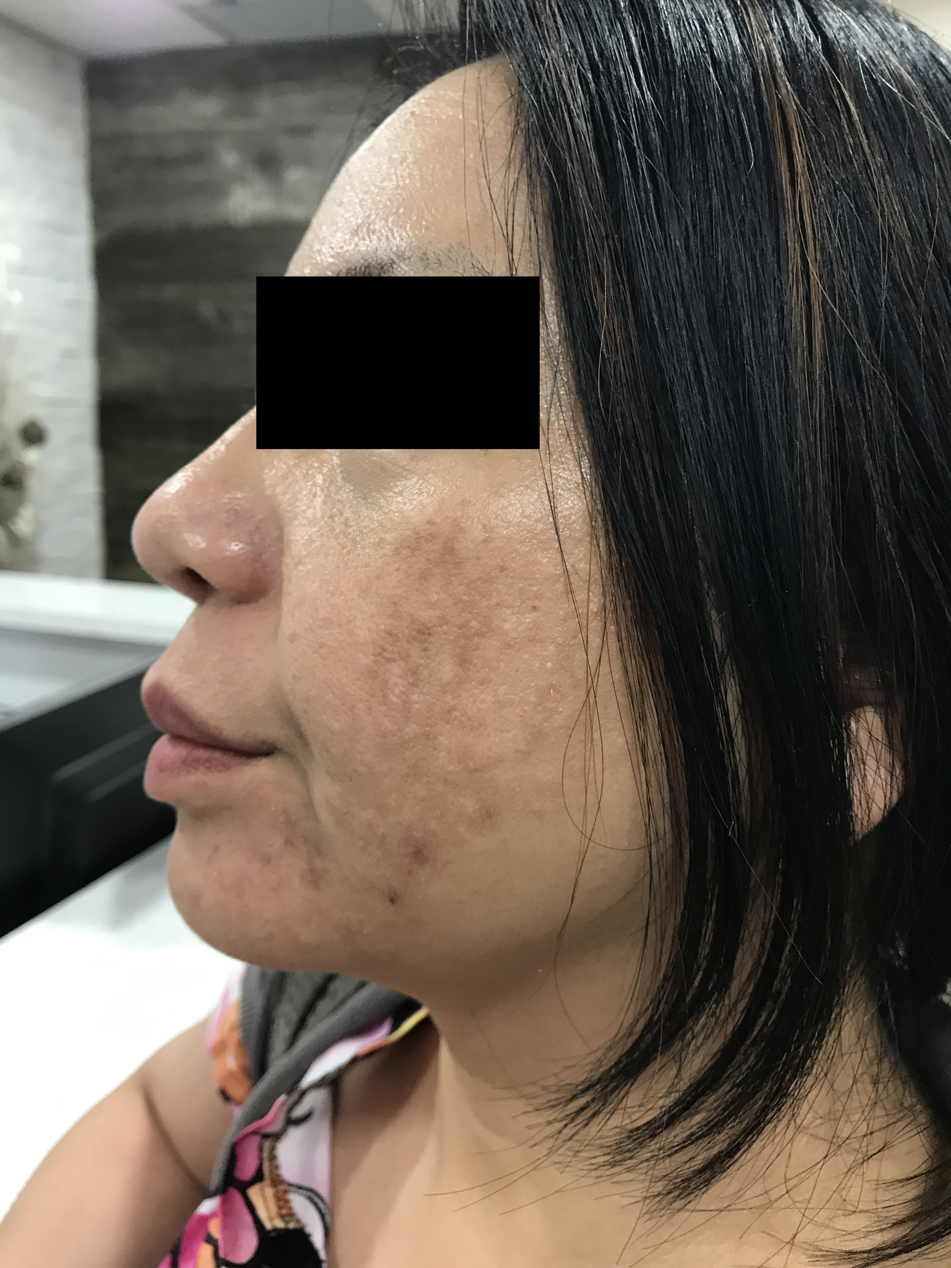 MicroNeedling Two weeks after treatment