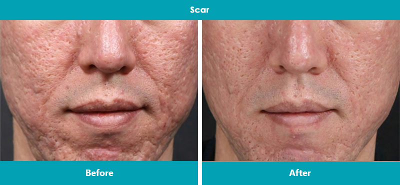 MicroNeedling – before & 4 weeks after