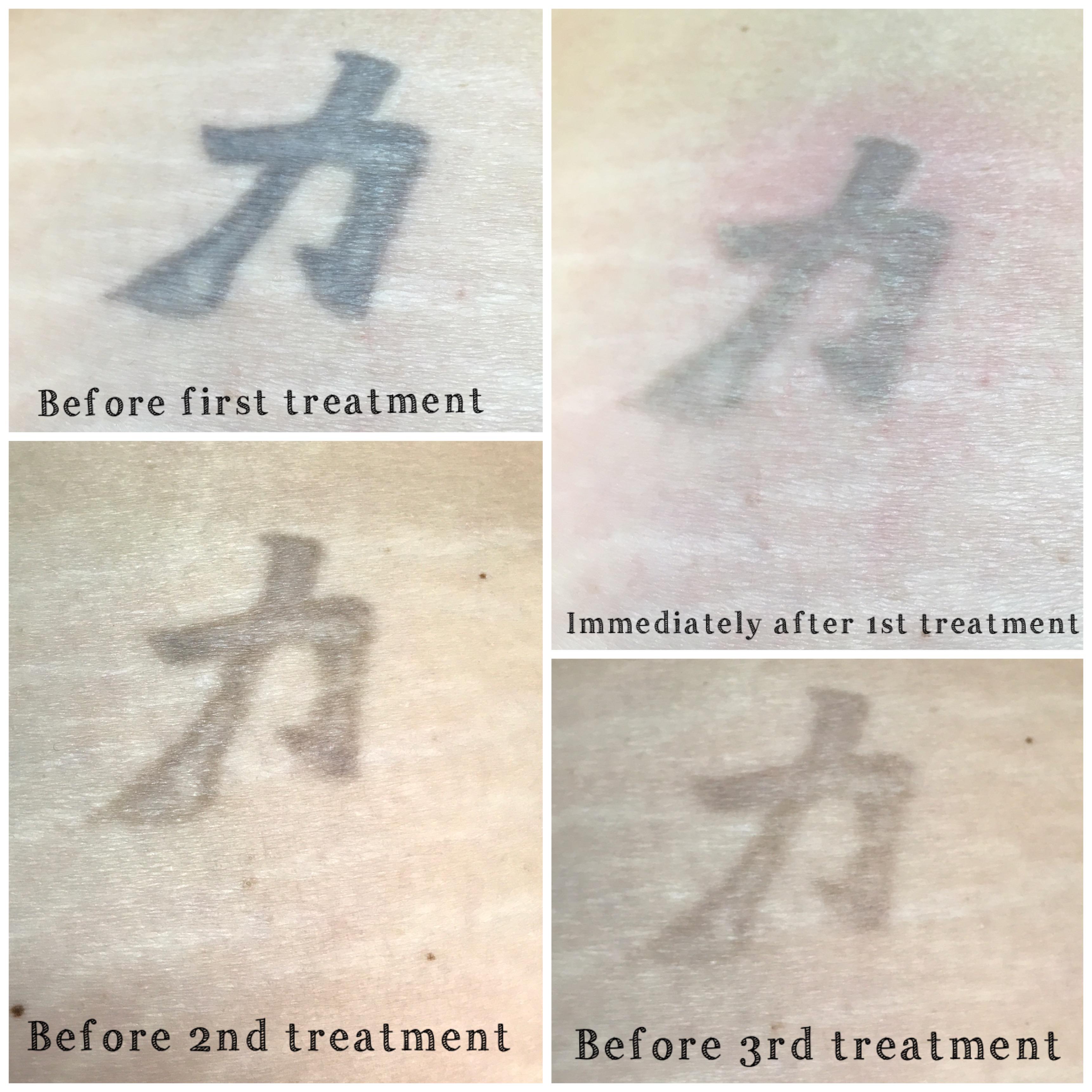 NU Med Tattoo Removal