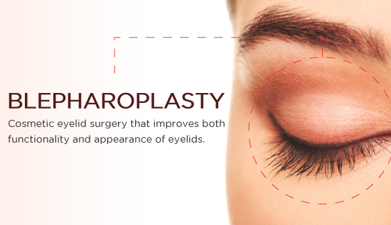 The Truth About Blepharoplasty In 3 Minutes