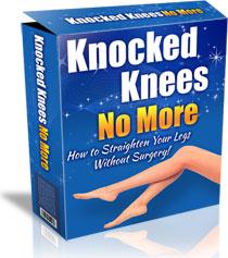 Knocked Knees No More Review – knockedkneesnomore.com a Scam?