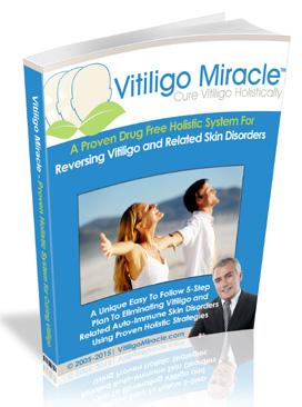 button to Vitiligo Miracle website